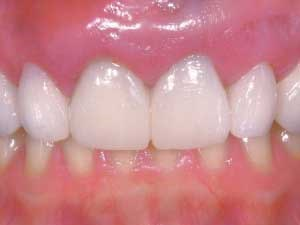 Customized Provisional Abutment and Provisional Restoration for an Immediately-Placed Implant