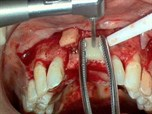 Bone Block Graft and Soft Tissue Graft