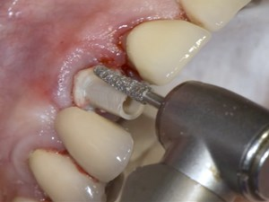 Techniques to Manage Emergence Profile and Cementation in Implant Dentistry