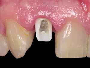 Immediate Implant Therapy with Provisionalization in the Anterior Region