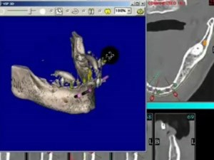 Implant Supported Overdentures - A Comprehensive Approach - Part 1 of 3