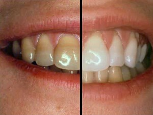 Creating Treatment Options for Discolored Teeth - Part 1 of 2
