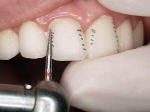 Creating Treatment Options for Discolored Teeth - Part 2 of 2