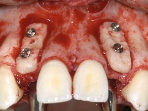 Synergy of Bone and Gingival Augmentation in Tooth Replacement - Part 2 of 4