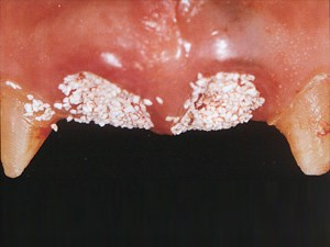 Clinical Realities - Papilla and Free Gingival Margin Preservation in Multiple-Tooth Extraction