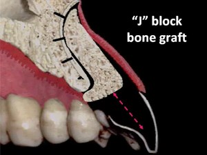 Last Frontier in Esthetic Prosthetic Gingival Reconstruction on the Implant Restoration - Part 1