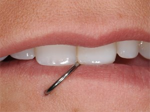 Revitilizing Old & Worn Composite Veneers