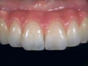 Interface Development: Managing Ridge Deformities in the Esthetic Zone - Part 2 of 3