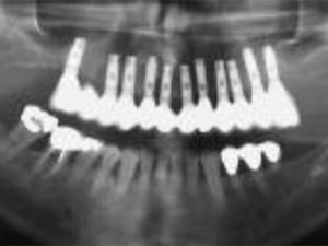 The Efficacy of Full-Arch Immediately Restored Implant-Supported Reconstructions in Extraction and Healed Sites - A 36-Month Retrospective Evaluation