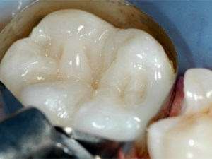 Trouble-free Highly Esthetic Composite Restorations