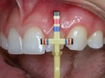 Comprehensive Esthetic Therapy with New Ceramic Systems - Part 1 of 2 - Thin Veneers