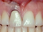 Keys to Successful Implants within the Esthetic Zone - Part 1 of 2
