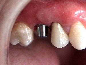 Extraction & Immediate Implant of Fractured Crown