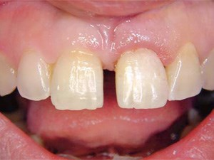 Use of the Natural Tooth for Soft Tissue Development - A Case Series