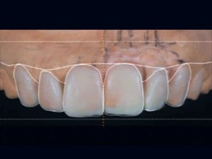Interface Development: Managing Ridge Deformities in the Esthetic Zone - Part 3 of 3
