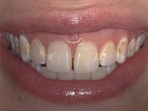 Correction of Tooth Defects and Discolored Teeth Using Direct Composite Resin - Part 1 of 4