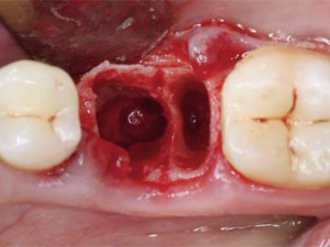 Immediate Molar Replacement Utilizing Narrow Diameter Implants - Allowing Implant Placement in Almost Any Situation - Part 1 of 2