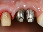Consecutive Anterior Implants: Surgical and Restorative Management of Esthetic Failures - Part 1