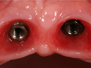 Consecutive Anterior Implants: Surgical and Restorative Management of Esthetic Failures - Part 2