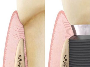 Consecutive Anterior Implants: Surgical and Restorative Management of Esthetic Failures - Part 3
