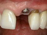 Consecutive Anterior Implants: Surgical and Restorative Management of Esthetic Failures - Part 4