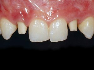 Consecutive Anterior Implants: Surgical and Restorative Management of Esthetic Failures - Part 5