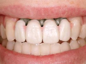 Prosthetic Gingival Reconstruction in Fixed Partial Restorations - Part 3: Laboratory Procedures and Maintenance