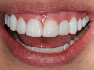 Correction of Tooth Defects and Discolored Teeth Using Direct Composite Resin - Part 4 of 4