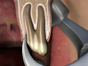 Tooth Extraction Revisited - The Utilization of the Physics Forceps