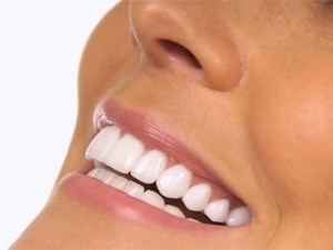 Tooth Whitening State of the Art - It takes a Team - Part 1