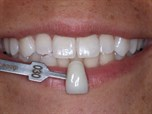 Tooth Whitening State of the Art - It takes a Team - Part 3