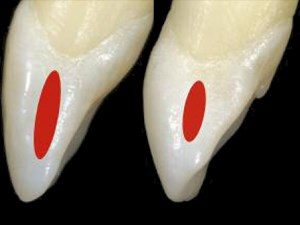 Proximal Contact Areas of the Maxillary Anterior Dentition