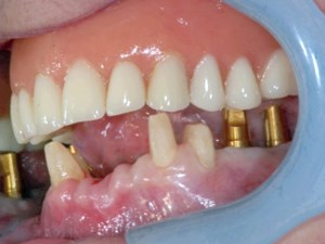 Combination Teeth and Implants Reconstruction of the Mandible - Case Presentation