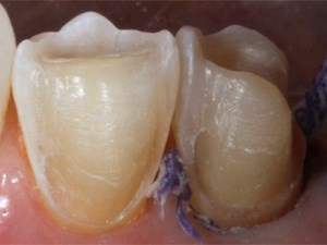 Precision Impressions and Provisional Protocols for Successful Restorations - Part 1 of 2
