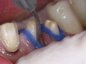 Bonding of Posterior Partial Coverage Ceramic Restorations - Part 2 of 3