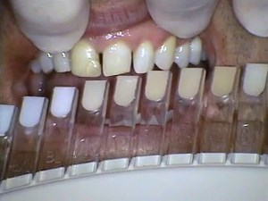 Transitional Bonding - Major Esthetic & Occlusal Changes in One Visit Using Composite - Part 1 of 5