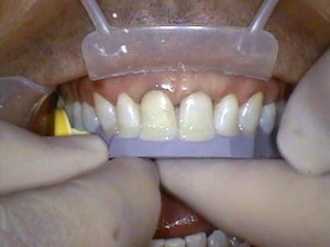 Transitional Bonding - Major Esthetic & Occlusal Changes in One Visit Using Composite - Part 3 of 5