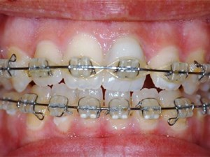 Non-surgical Orthodontic Treatment of Anterior Open Bite in an Adult Patient