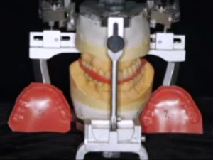 Aesthetics and Functions in the Rehabilitations of Complex Prosthodontics: A Multidisciplinary Approach in the Lights of New Technologies and Materials - Part 2 of 2