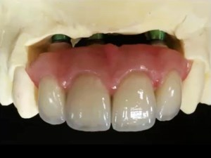 Evolving Implant Aesthetics - Options, Limitations and Solutions - Part 1 of 2
