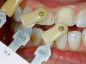 Ceramic Treatment Options for Discolored Teeth - Part 1