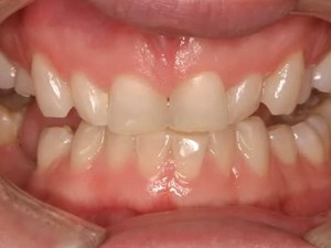 Balancing Occlusion & Esthetics in Restorative Dentistry