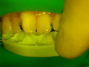 Implant Therapy and Esthetic Considerations - A Conservative Direct Composite Alternative - Part 4 of 6