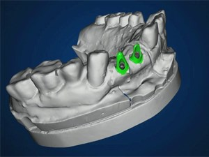 Possibilities and Limitations in Esthetic Implant Therapy