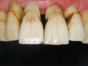 New Concepts in Single Implants in the Esthetic Zone - Part 1 of 2