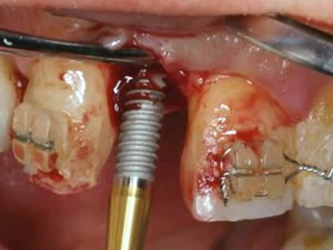 The Role of Orthodontics in Treating the Adult and Periodontal Patient - Making Critical Clinical Decisions