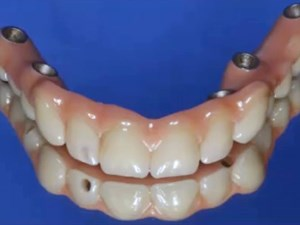 Dental Implant Overdenture Clinical Techniques and Tooth Selection - Part 3 of 3