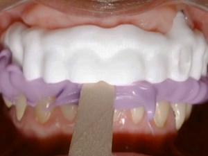 Full-Arch Zirconium Frameworks and Pink Esthetics - Part 2 of 2