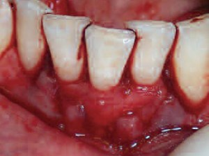 Periodontal Plastic Surgery - Predictable Root Coverage in the Mandibular Incisor Region