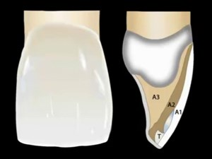 Composite - The Ultimate Material for Minimally Invasive Dentistry - Part 3 of 3